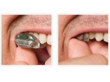 سمعک دندانی